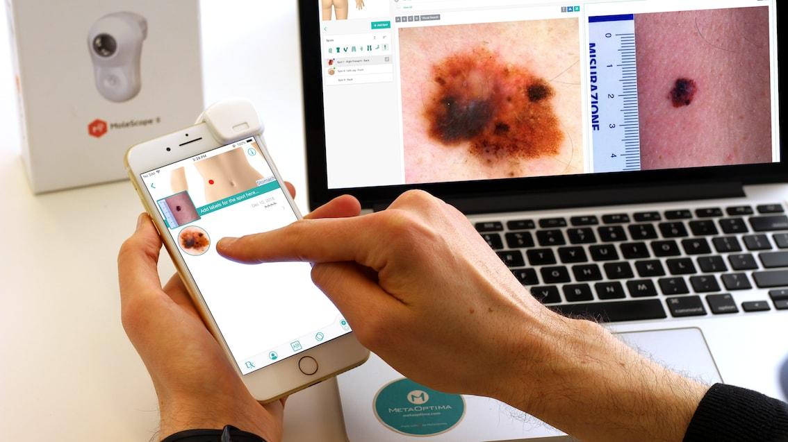 Global-Tele-dermatology.jpg